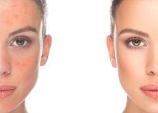Para el mantenimiento saludable de la piel, cabello y uñas