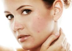 Maskné, el mantenimiento saludable de la piel tras la mascarilla